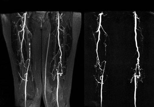 Магнитно-резонансная томография при атеросклерозе