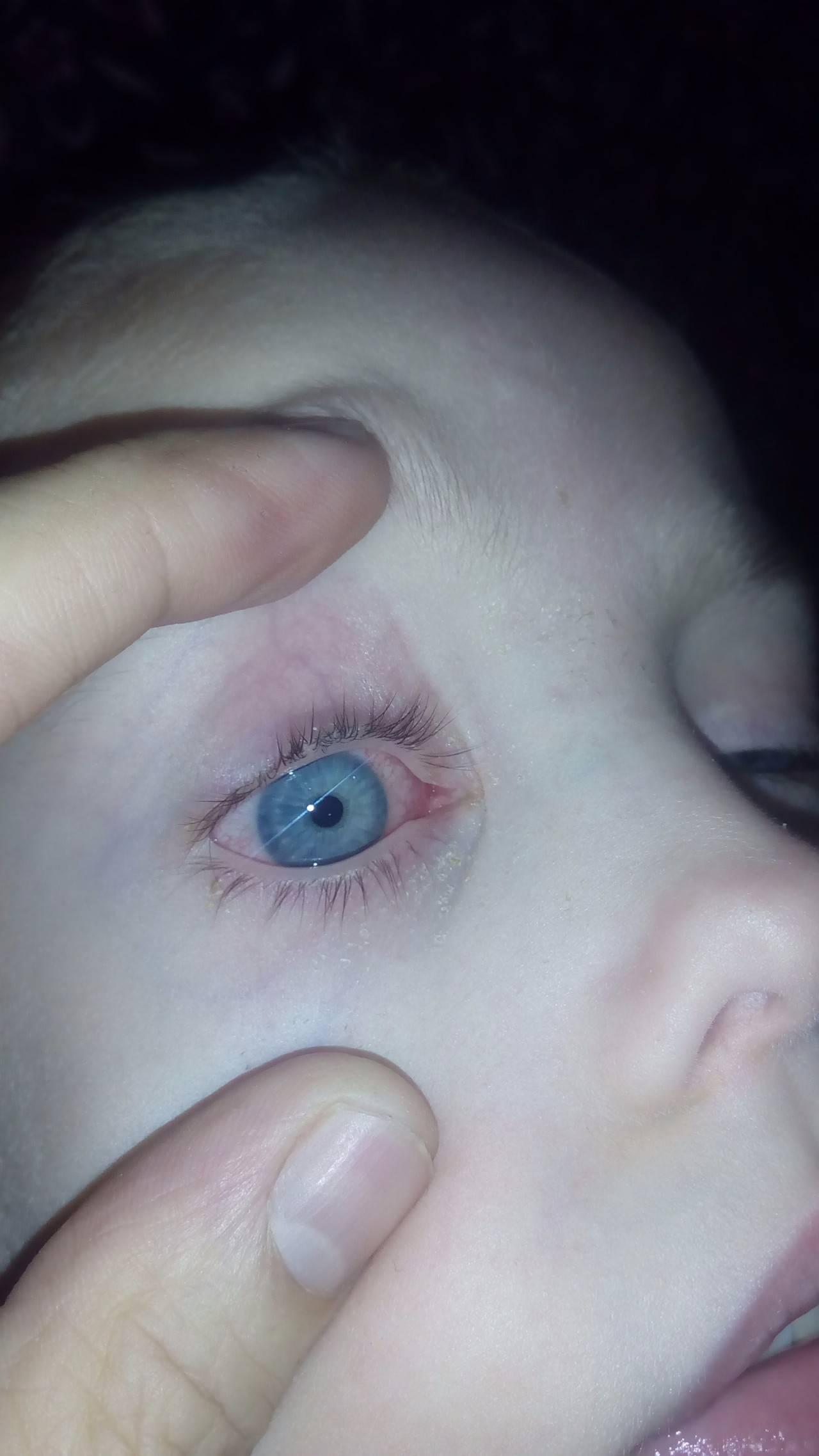 в помощь маме: почему появляются красные круги под глазами у ребенка?