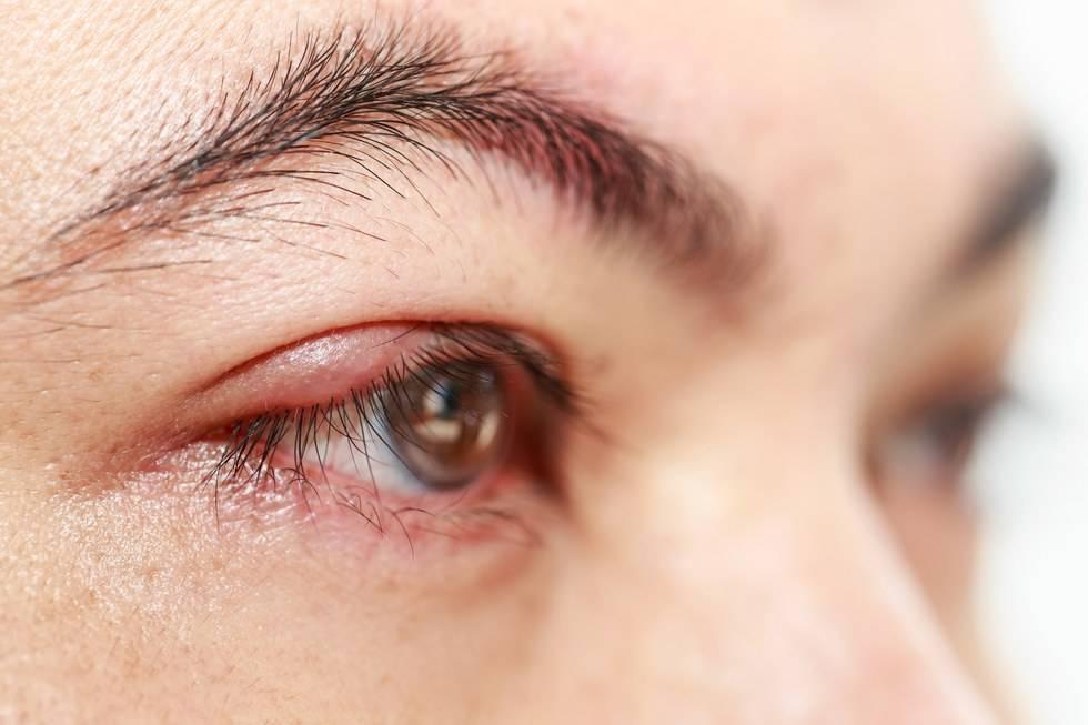 продуло глаз у ребенка чем лечить