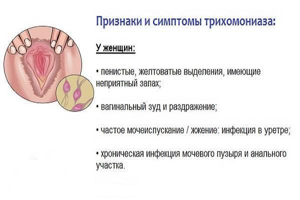 схема лечения трихомониаза