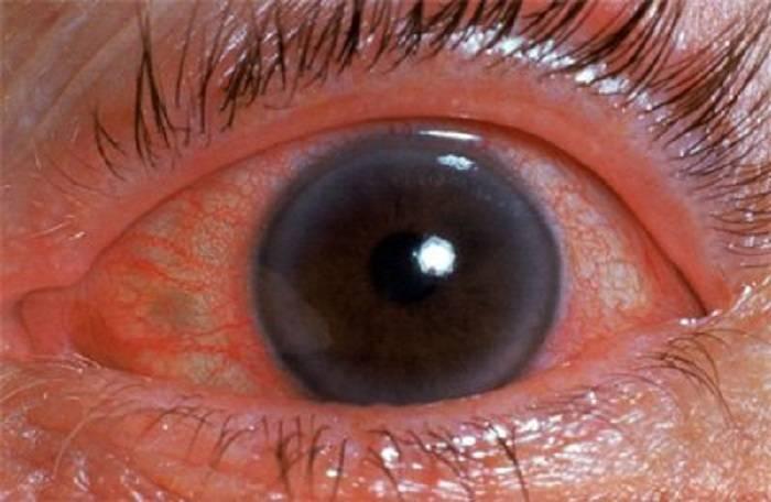 приступ глаукомы первая помощь