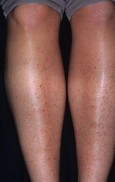 Солнечный дерматит: фото, мази, лечение у взрослых в домашних условиях