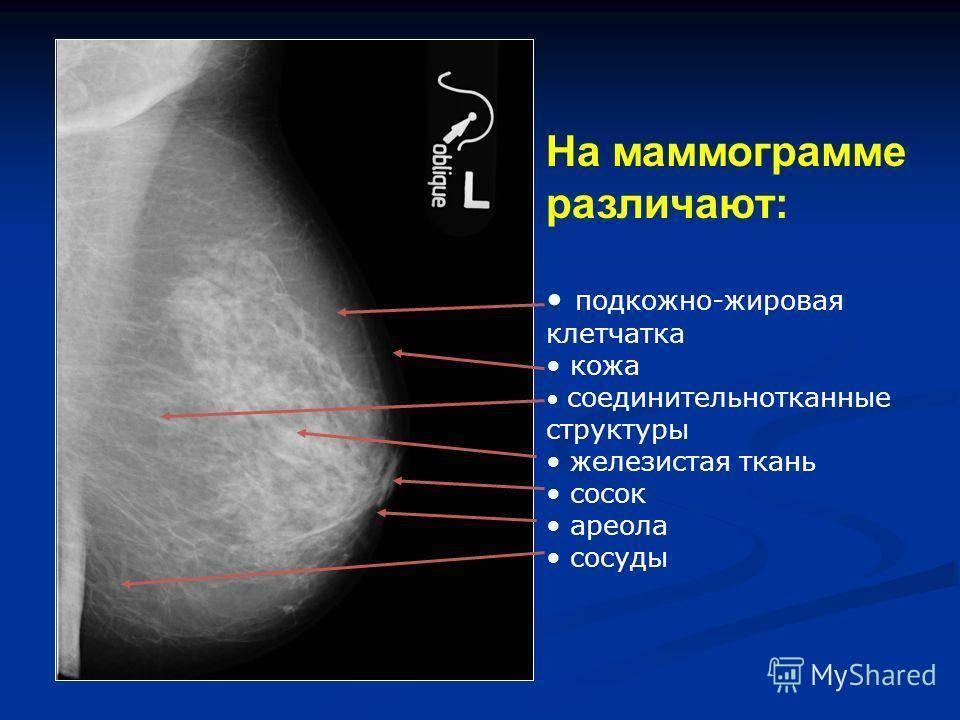 Маммография - это... описание процедуры, когда нужно делать, отзывы. узи или маммография - что лучше?