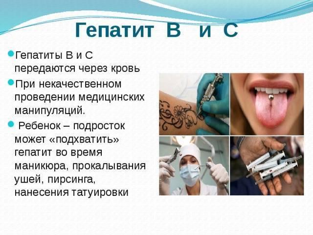гепатит с через поцелуй