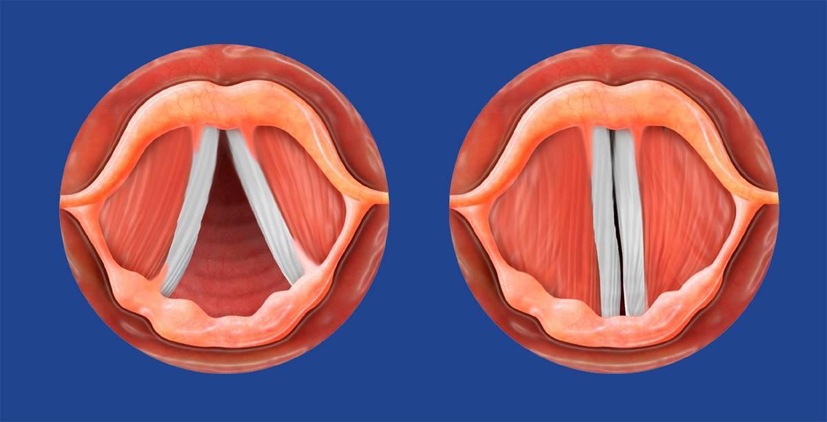 Пропал голос. как лечить при простуде, если болит горло, как восстановить в домашних условиях