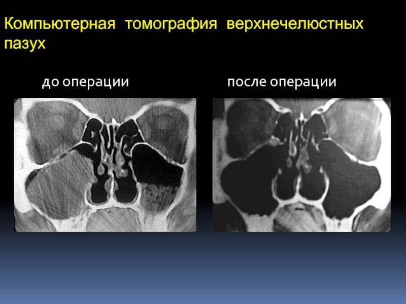 Гайморит грибковой природы