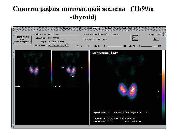 Сцинтиграфия щитовидной железы: что это такое, зачем и как проводят данное исследование