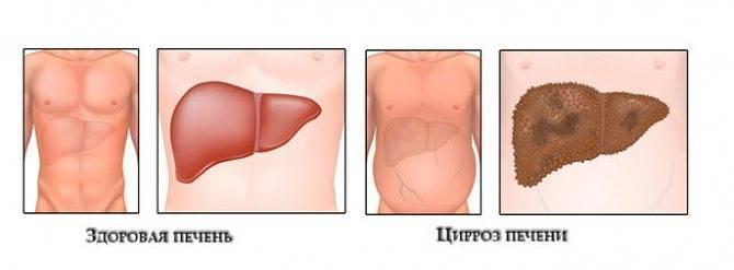 цирроз последняя стадия