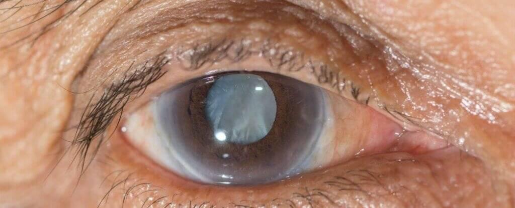 глаукома смерть