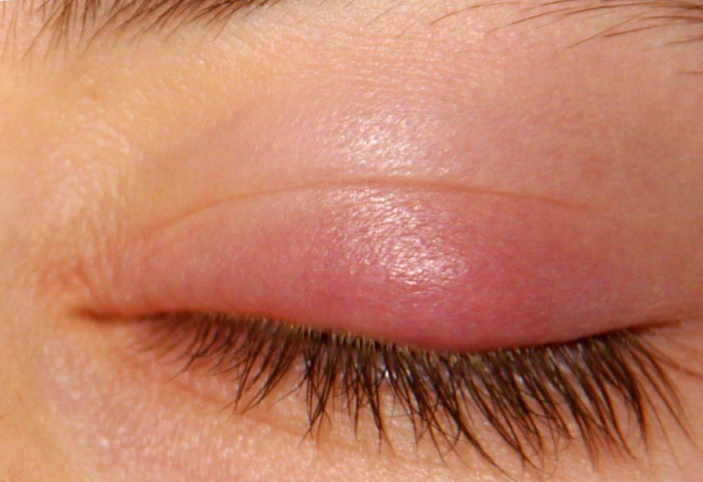 Признаки ячменя на глазу (начальная стадия): что делать, методы лечения