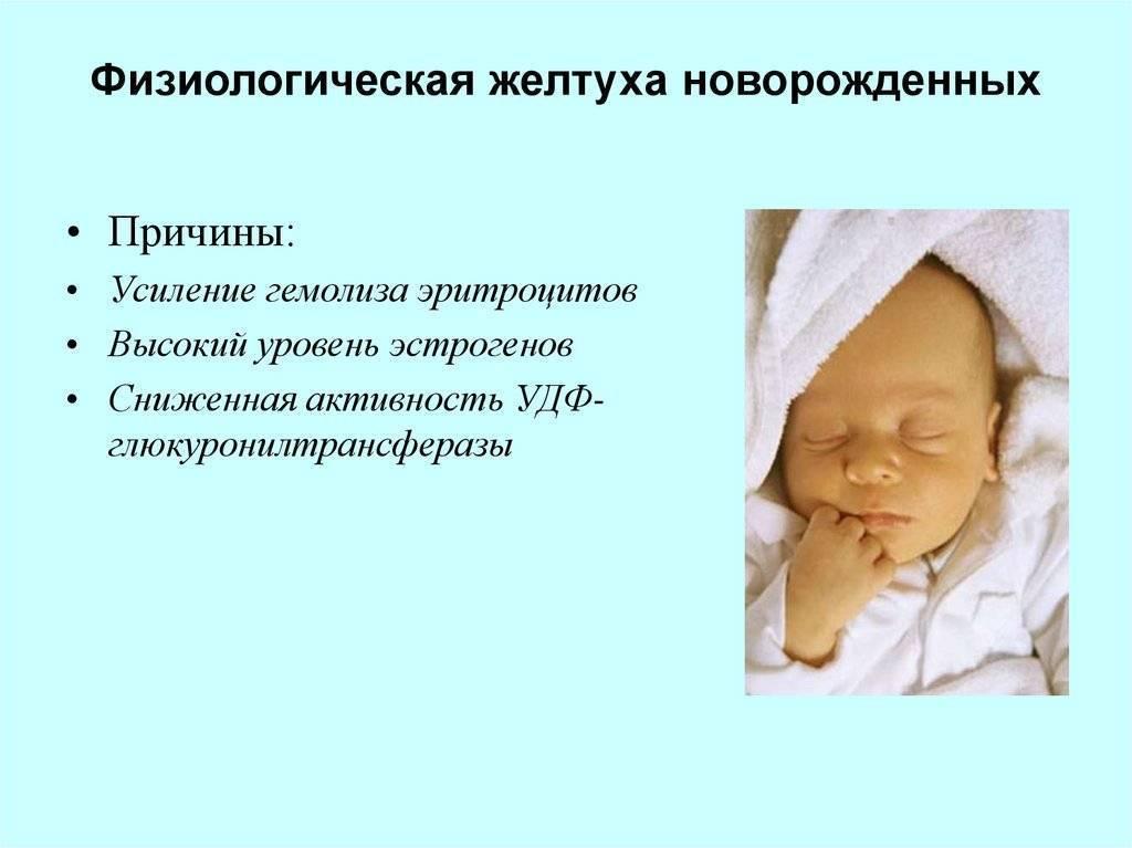 Желтенький малыш: что такое неонатальная желтуха и опасна ли она для новорожденных?