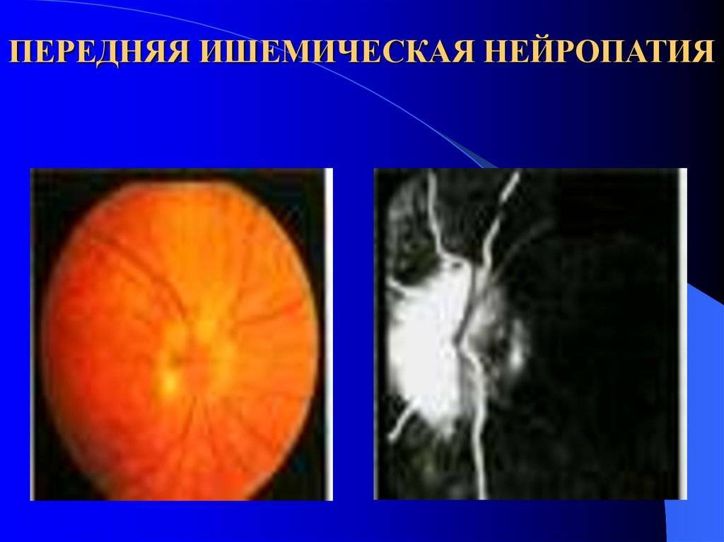 Ишемическая нейропатия зрительного нерва : причины заболевания, основные симптомы, лечение и профилактика