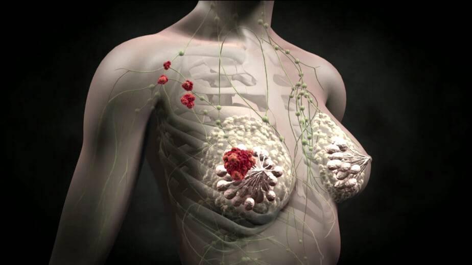 излечим ли рак молочной железы