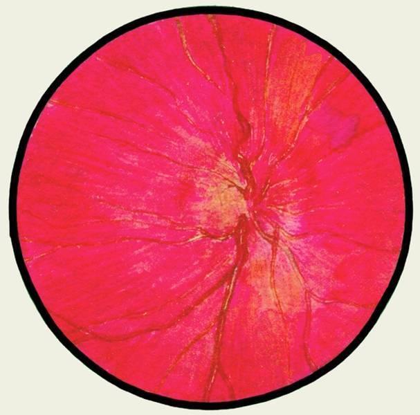 Неврит зрительного нерва: симптомы, лечение, причины возникновения
