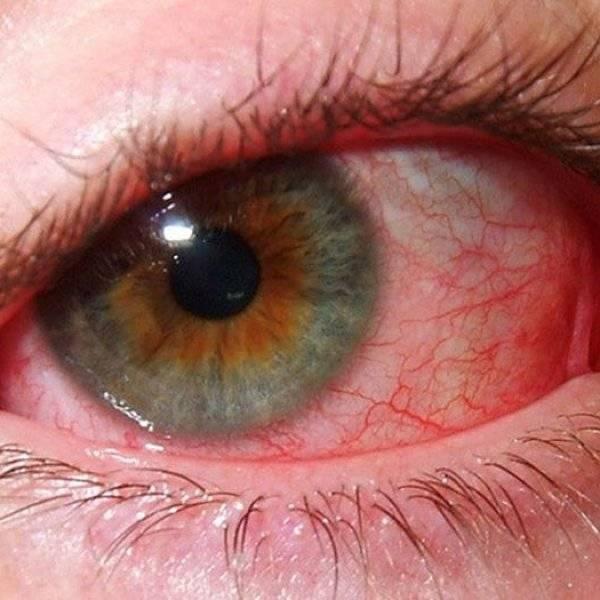 Заболевания глаз | глаукома, дакриоцистит, ирит, катаракта, кератит, кератоконус, коньюктивит, отслоение сетчатки и различные травмы глаз
