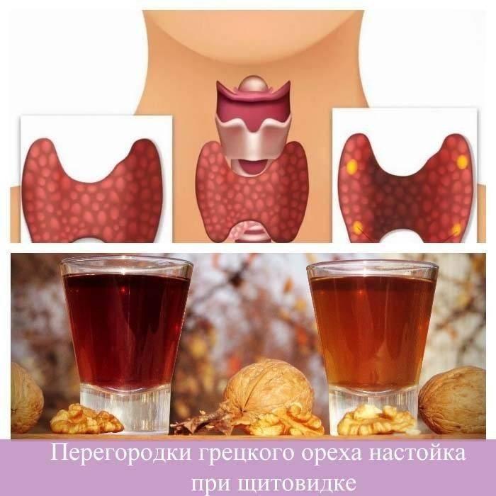 Зеленый грецкий орех лечение при щитовидной железе узлах