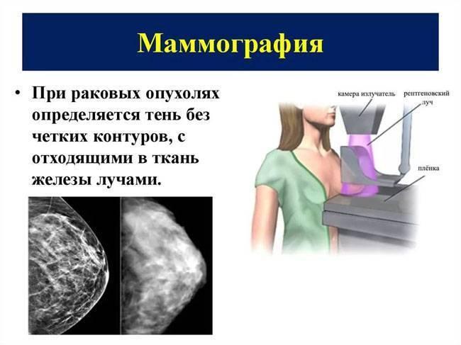 Маммография и узи молочных желез – какой вид диагностики выбрать?