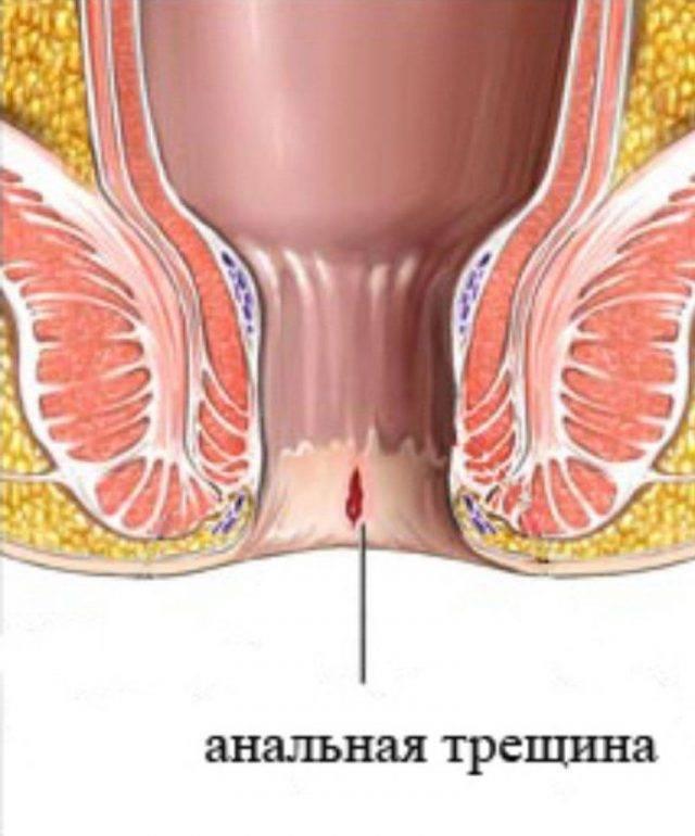Чем лечить геморрой после родов при кормлении грудью?