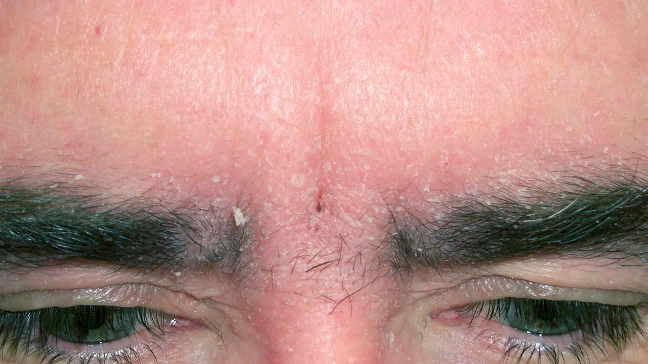 Псориаз на глазах (веках), как лечить псориаз под глазами