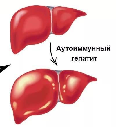 лечение аутоиммунного гепатита