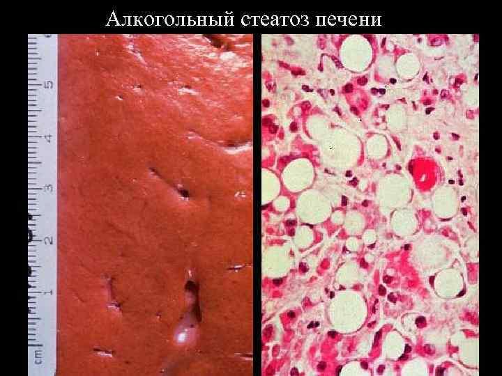 стеатогепатоз печени симптомы
