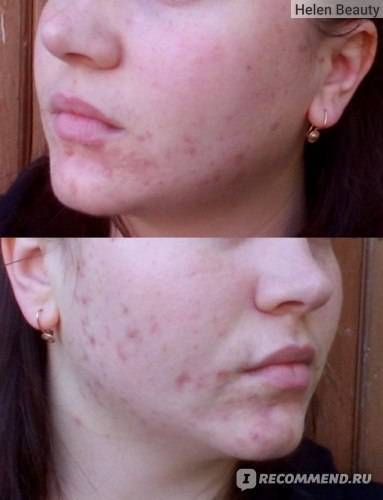Анализ демодекс кожи