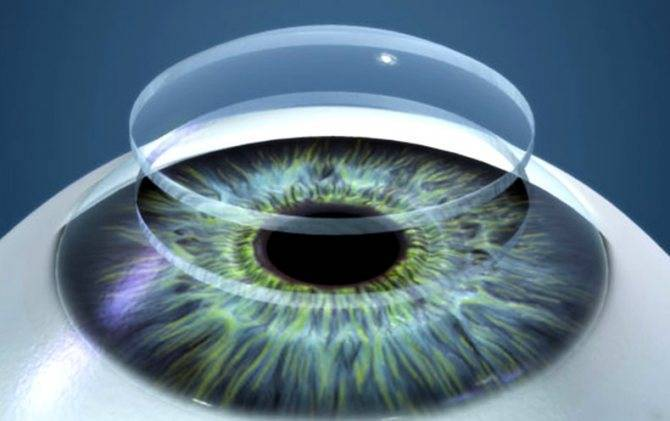 Пересадка роговицы глаза (кератопластика): ход операции, сколько стоит, отторжение