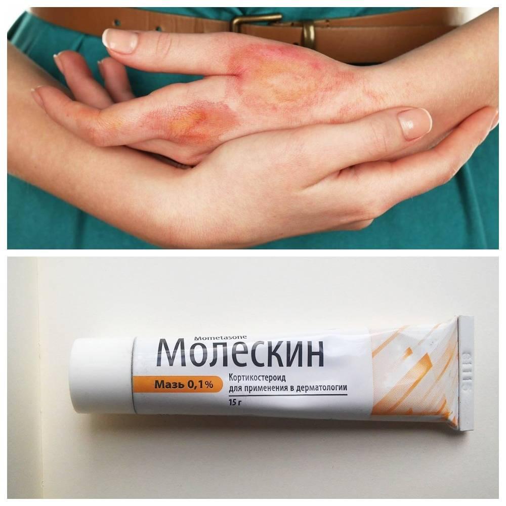 мази от солнечного дерматита