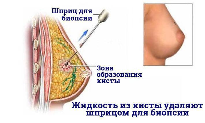 Как лечить кисты в молочных железах. диагностика кисты молочной железы