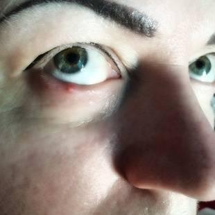 боль в глазном яблоке при надавливании