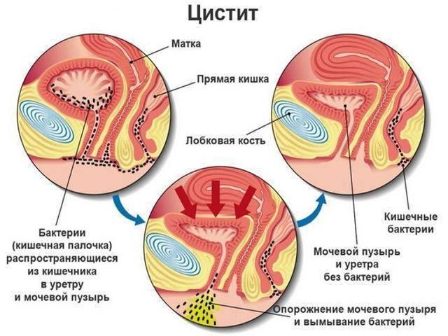 Симптомы цистита у мужчин и методы его лечения