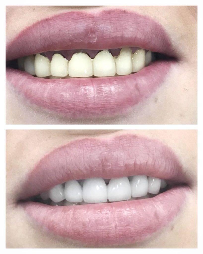 Реставрация зубов— фото до и после художественного восстановления зубного ряда