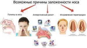 Почему возникает заложенность носа без насморка