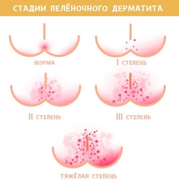 пеленочный дерматит быстрое лечение комаровский