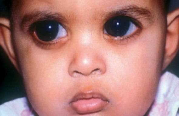 Врожденная глаукома у детей - причины возникновения