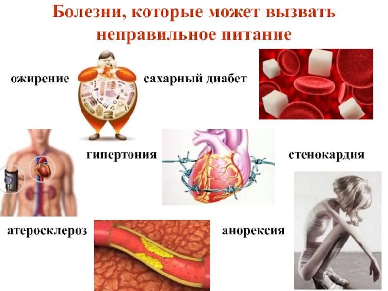 Диабет и атеросклероз
