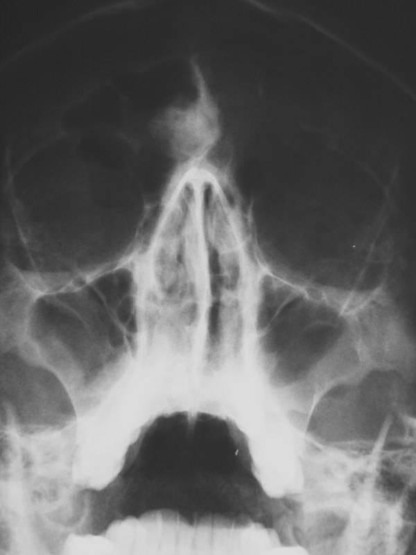 Удаление остеомы лобной пазухи — ooncologiya