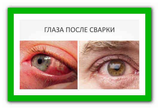 если болят глаза от сварки что делать в домашних условиях