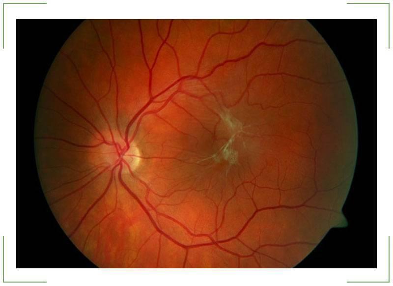 фиброз сетчатки глаза лечение