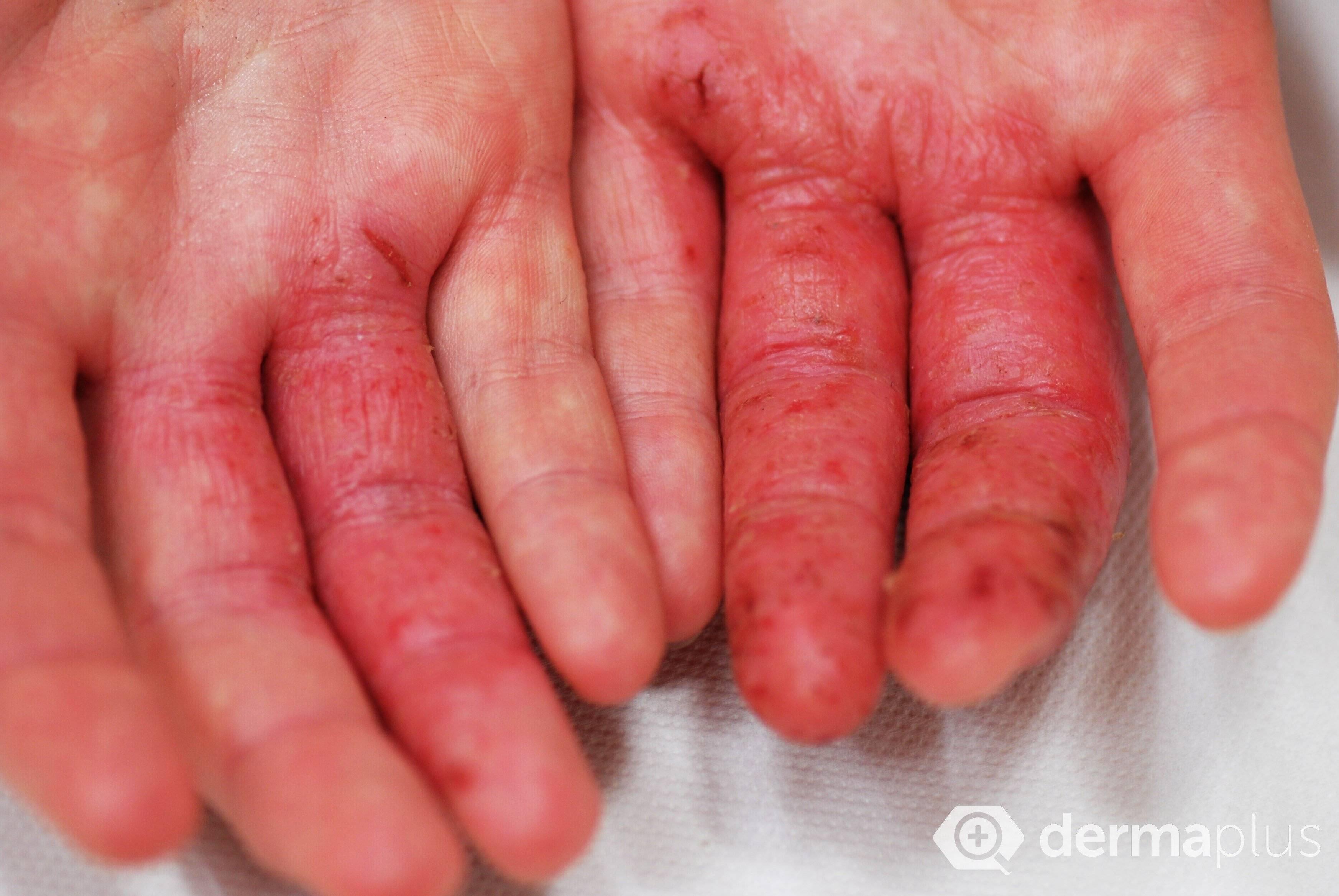 Контактный дерматит неуточненный