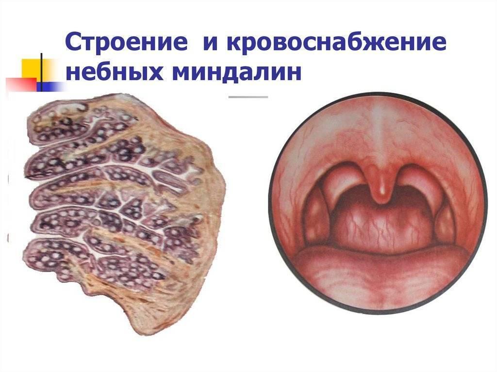 Заболевание и лечение нёбных миндалин