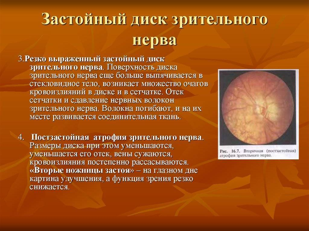 Отек диска зрительного нерва симптомы