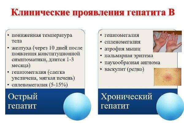Повышение температуры при гепатите с