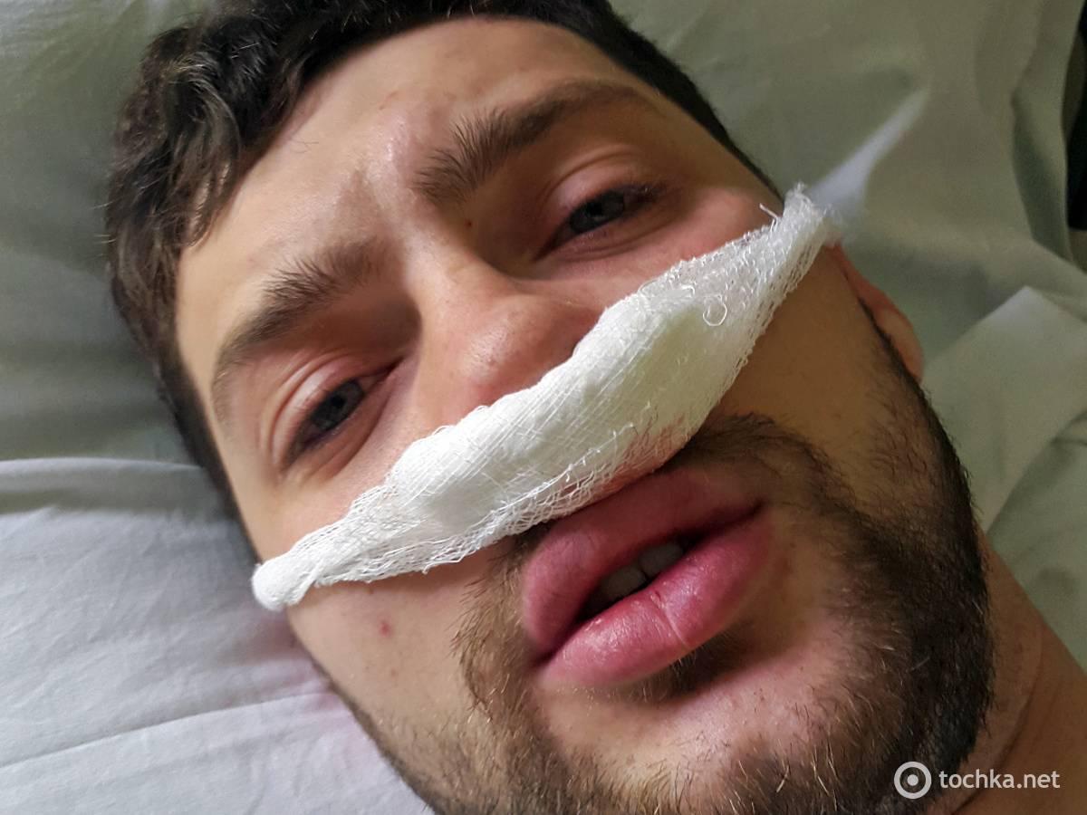 Как исправить деформацию носовой перегородки без операции