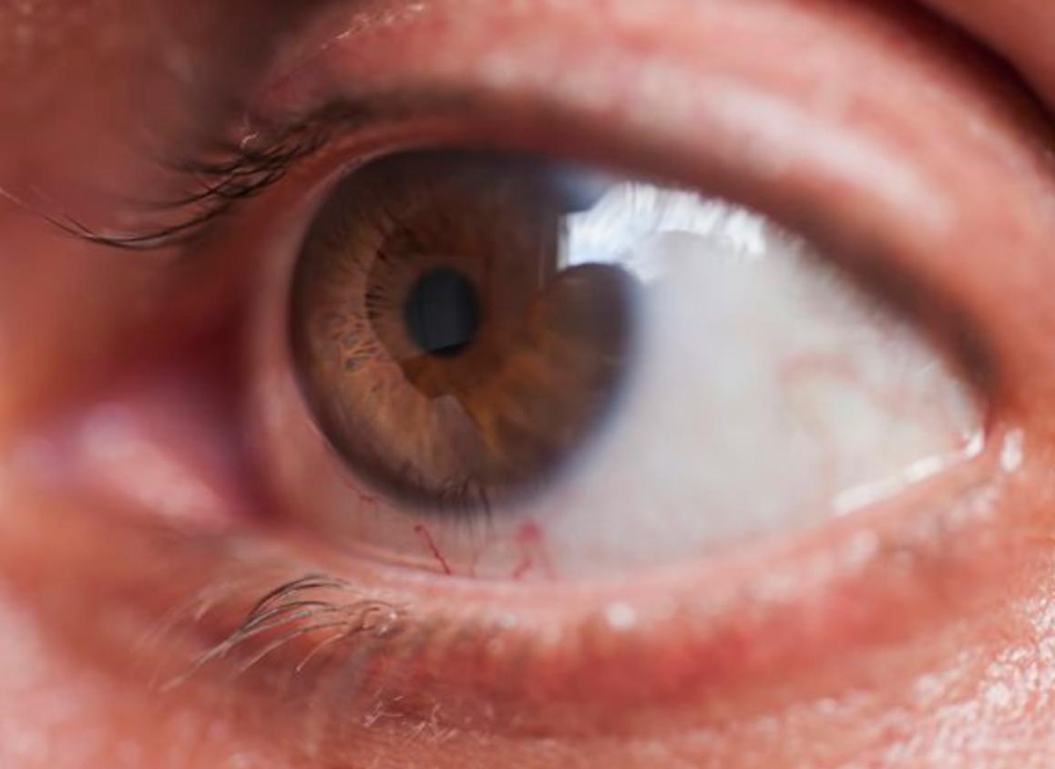 как вылечить глаукому в домашних условиях