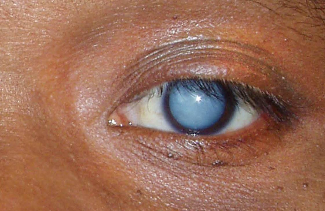 мутные белки глаз
