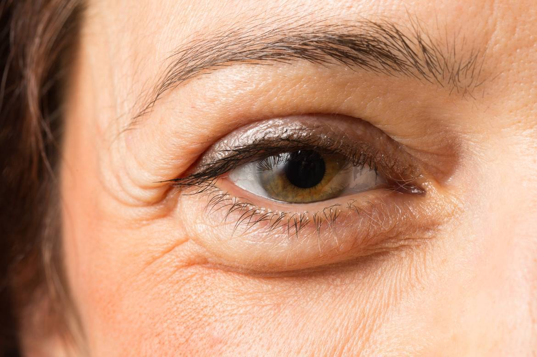 У ребенка отекают глаза: причины, симптомы, лечение
