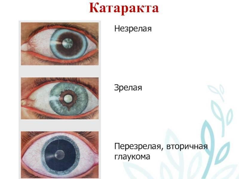 Что такое вторичная глаукома и способы ее лечения