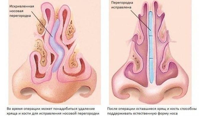 Искривление носовой перегородки— симптомы и лечение