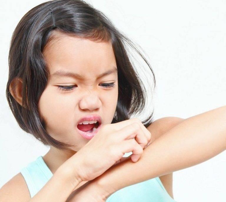 Симптомы и лечение чесотки у детей, фото